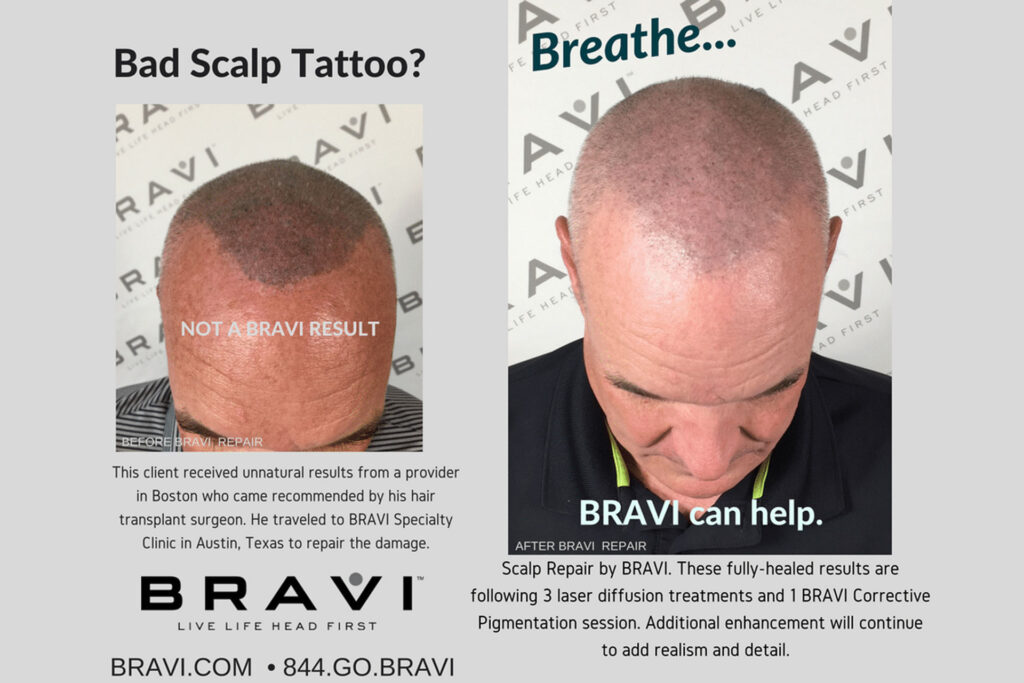 Fixing Bad Scalp MicroPigmentation - Based in Austin TX. BRAVI offers expert SMP Scalp MicroPigmentation and SMP correction.