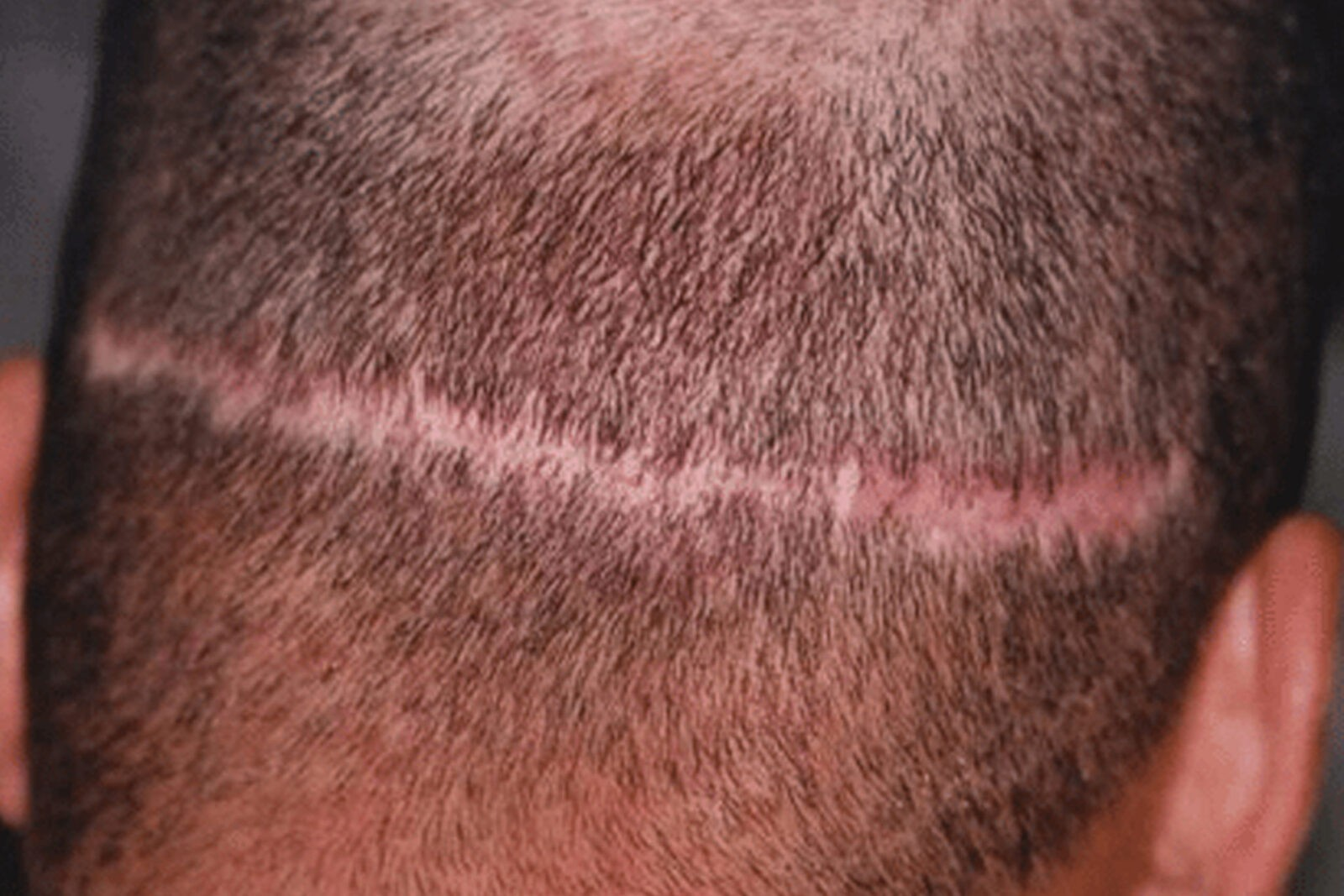 4 Things Your Hair Transplant Surgeon Probably Won't Tell You