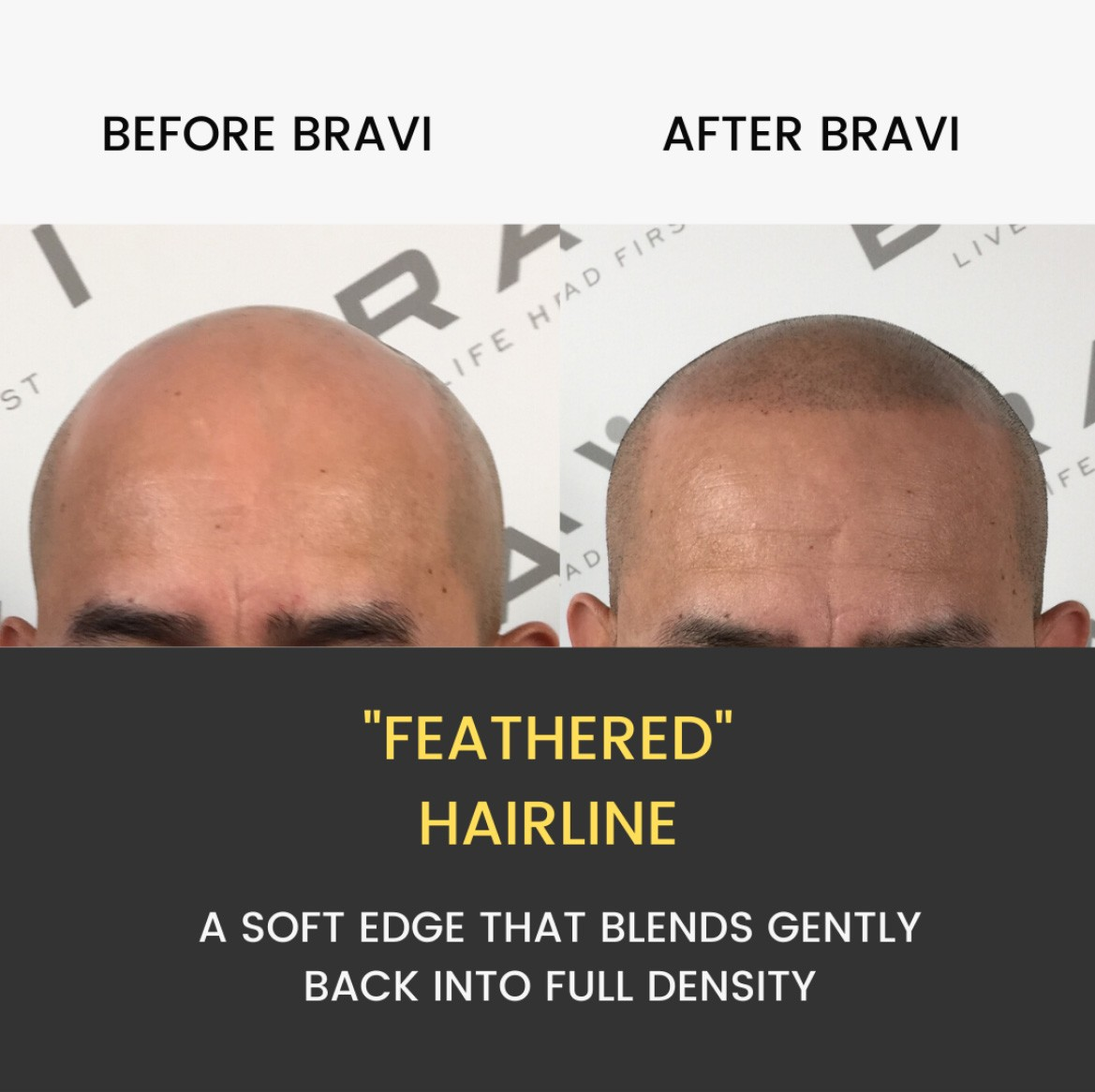 Hairline Restoration Based in Austin TX. BRAVI offers expert SMP Scalp MicroPigmentation and SMP correction. The comprehensive and stigma-free solution to hair loss.