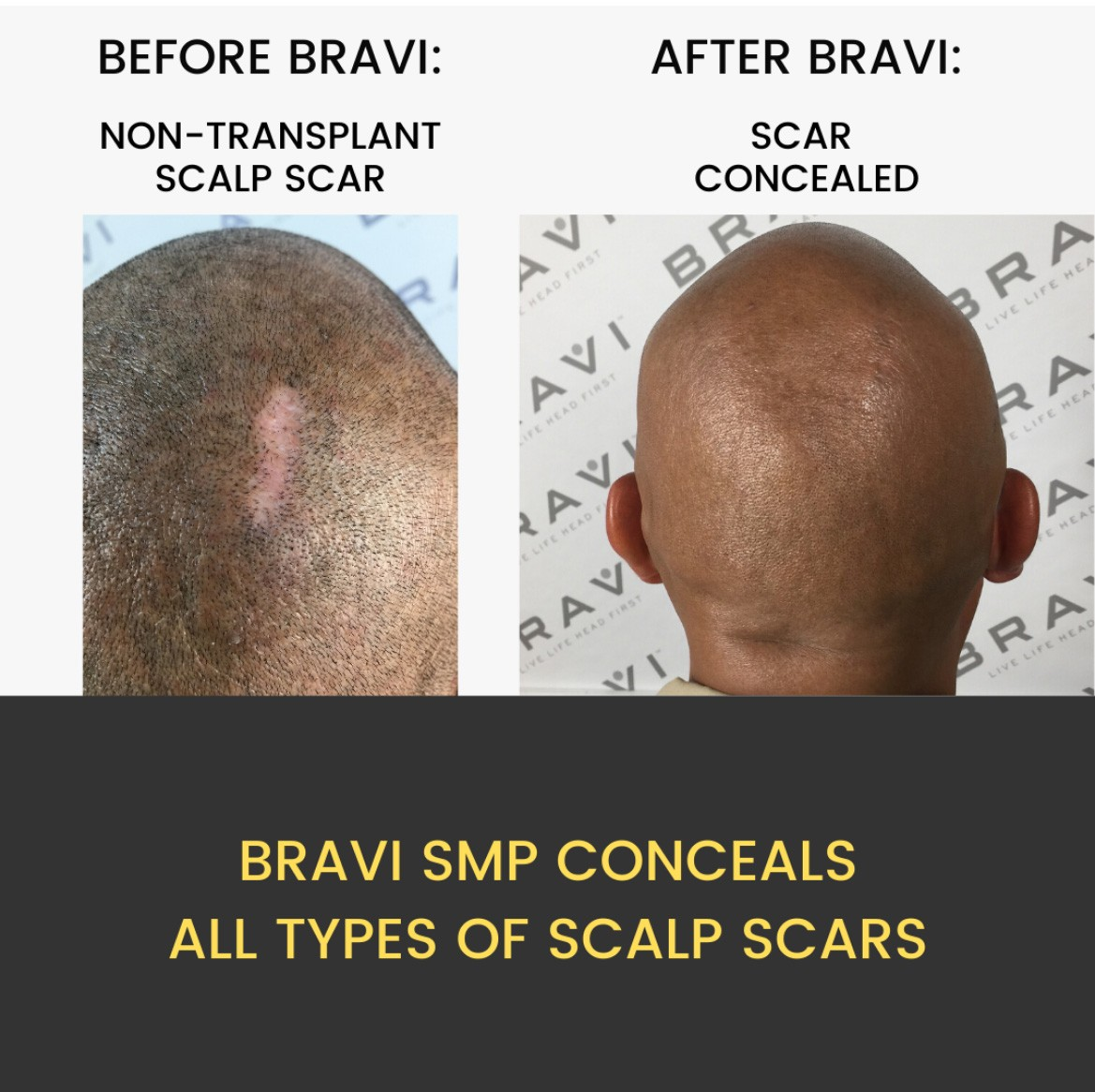 BRAVI Conceal Uses Expertly-Applied Scalp MicroPigmentation SMP To Hide Hair Transplant And Other Head Scars
