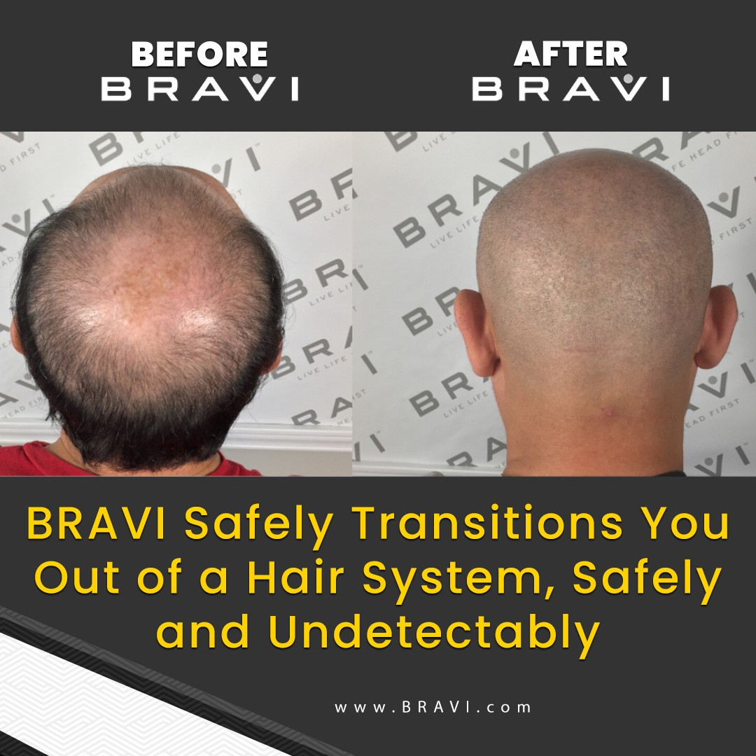BRAVI offers expert SMP Scalp MicroPigmentation and SMP correction.