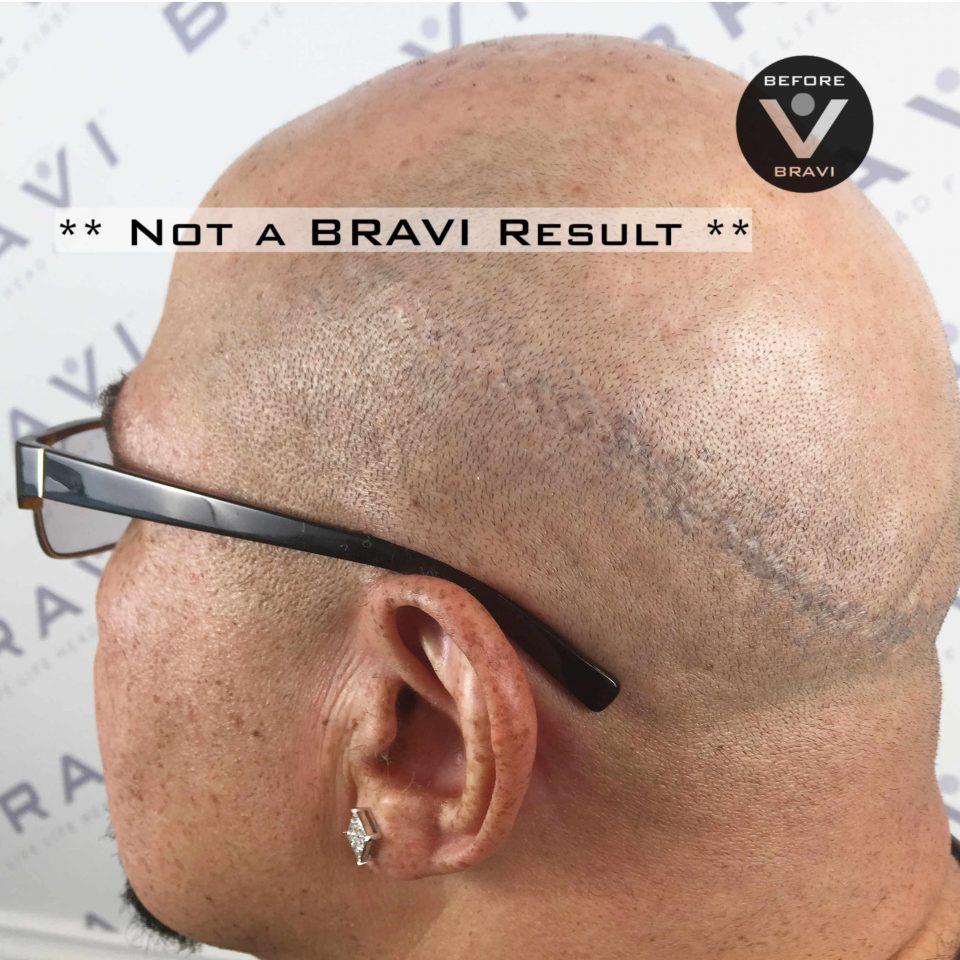 Scar Transplant Repair