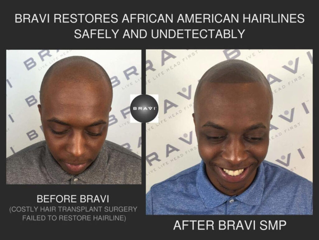 BRAVI offers expert SMP Scalp MicroPigmentation and SMP correction. The comprehensive and stigma-free solution to hair loss - Based in Austin TX.