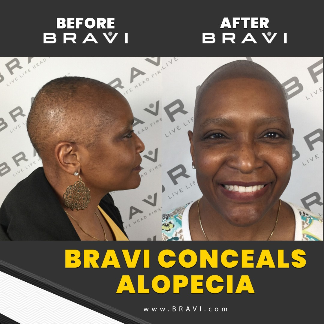 Based in Austin TX. BRAVI offers expert SMP Scalp MicroPigmentation and SMP correction. The comprehensive and stigma-free solution to hair loss.