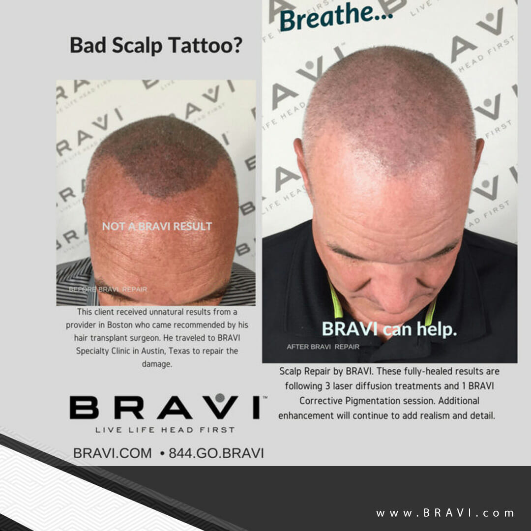 Introducing BRAVI - The comprehensive and stigma-free solution to hair loss.